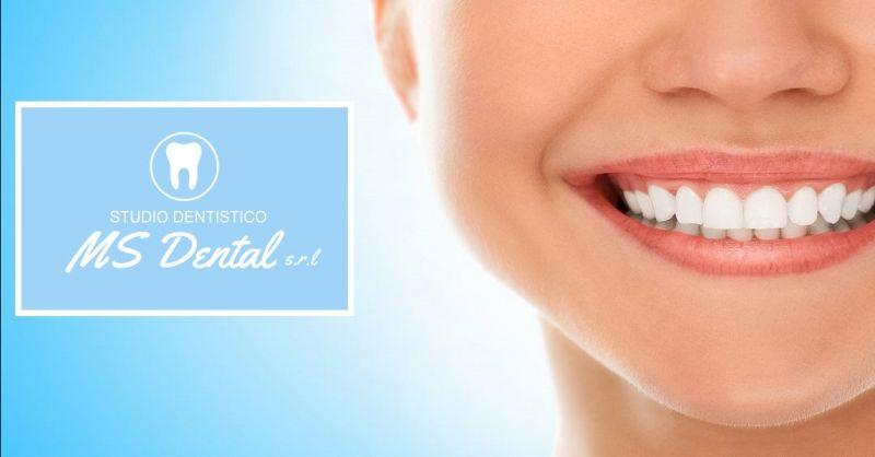 offerta implantologia dentale a Caldiero - occasione protesi dentali in zirconia a Verona