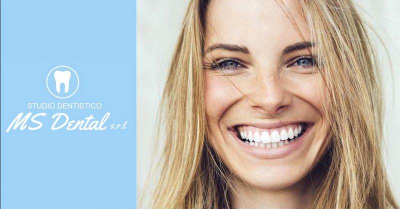 Promozione trattamenti medicina estetica dentale - offerta servizio sbiancamento denti Verona