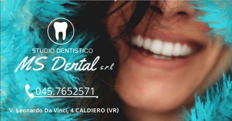 MS DENTAL - Promozione studio dentistico specializzato in protesi dentarie mobili Verona e provincia