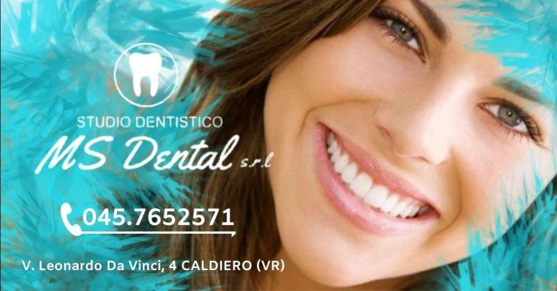 Offerta impianto dentale in zirconia Verona provincia - Occasione studio dentistico professionale Caldiero