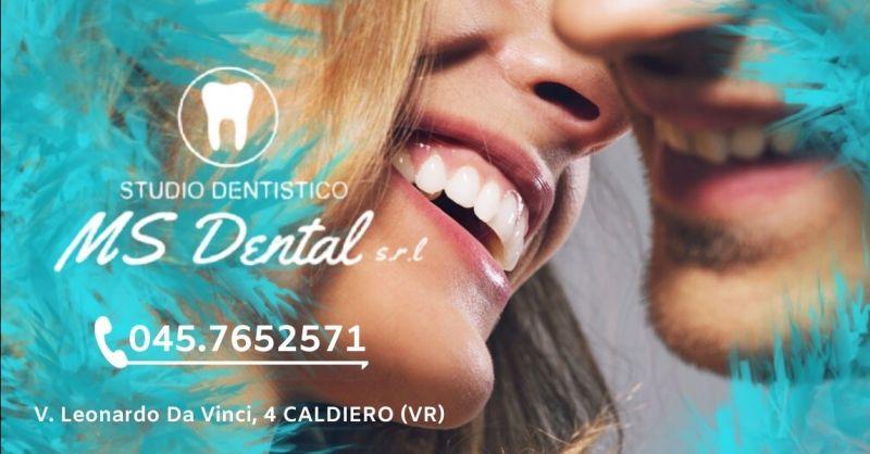 MS DENTAL - Offerta studio specializzato implantologia dentale Verona e provincia