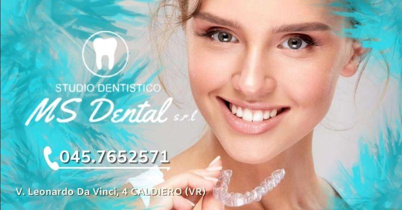 Promozione apparecchio per denti invisibile Verona e provincia - Occasione applicazione apparecchio invisalign