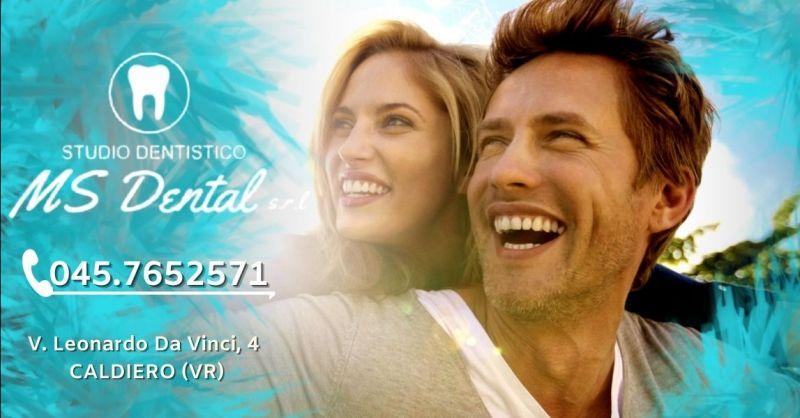 Offerta sbiancamento dentale professionale Verona provincia - Occasione servizio sbiancamento denti