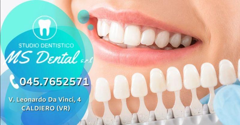 Offerta sbiancamento denti professionale provincia Verona - Occasione trattamento sbiancante denti