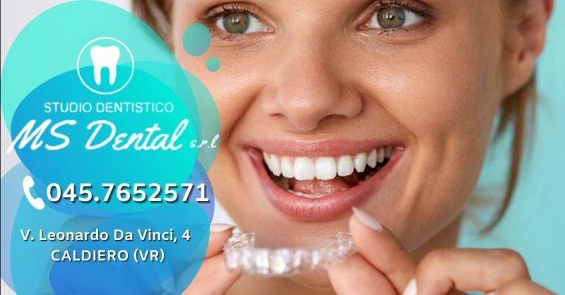 Promozione trattamento invisalign per i denti - Offerta applicazione apparecchio invisibile provincia Verona