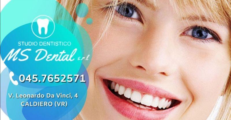 MS DENTAL - Promozione dentista con servizio anestesia indolore provincia Verona