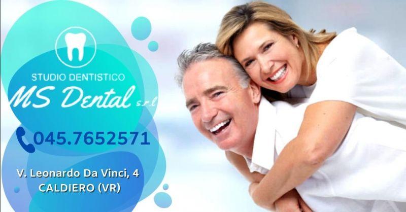 MS DENTAL - Offerta protesi dentali in zirconia al miglior prezzo provincia Verona