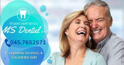 ms dental occasione miglior studio dentistico per protesi dentarie mobili provincia verona