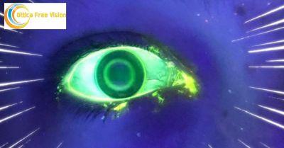 ottica free vision offerta problemi di vista occasione lenti a contatto notturne per miopia