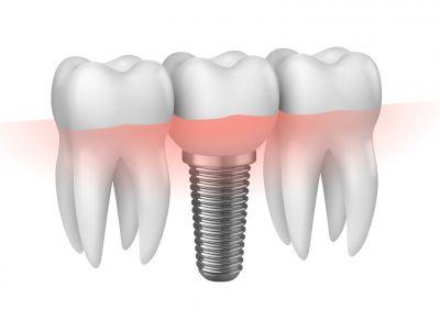 offerta implantologia a carico immediato reggio emilia protesi dentale fissa mobile