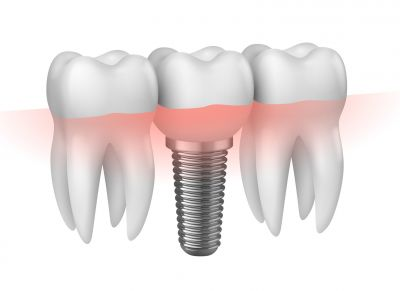 offerta implantologia a carico immediato castelfranco emilia protesi dentale fissa mobile