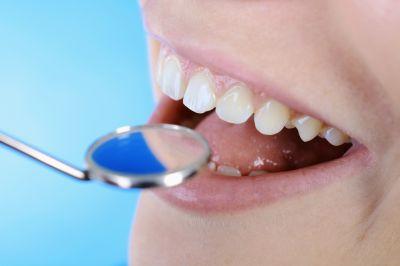 offerta cura del mal di denti promozione trattamento della parodontite castelfranco emilia