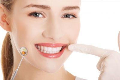 offerta impianti dentali con protesi promozione otturazione dentale castelfranco emilia