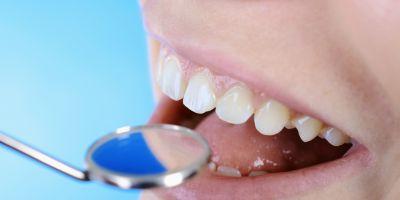 offerta cura delle carie dentali promozione trattamento del mal di denti modena sassuolo carpi