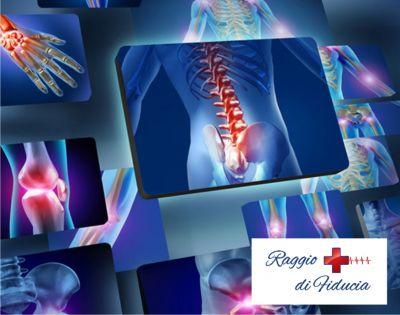 vendita articoli sanitari cascina promozione noleggio articoli ortopedici cascina