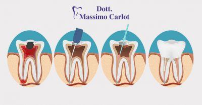 offerta servizio professionale di endodonzia terapia canalare a treviso dott massimo carlot