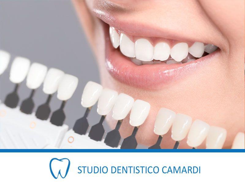 offerta applicazione faccette dentali provincia - faccette dentali ceramica provincia