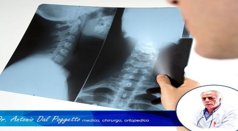 DOTT. ANTONIO DAL POGGETTO offerta lesioni cartilaginee - occasione ortopedico Catania