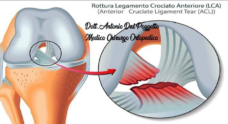 DOTT. ANTONIO DAL POGGETTO offerta lesione - occasione legamento crociato ginocchio  Catania