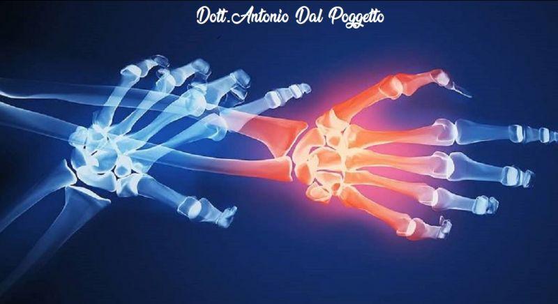 DOTT. ANTONIO DAL POGGETTO offerta cure lesioni - occasione legamenti Catania