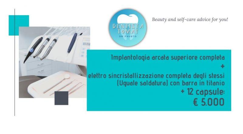 Occasione implantologia arcata superiore completa a Udine – Offerta dentista specializzato in impianti a Udine