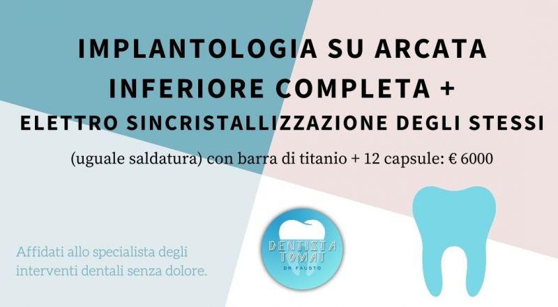 Occasione Implantologia su arcata inferiore completa a Udine – Offerta Ortodonzia con metodo Ricketts a Udine