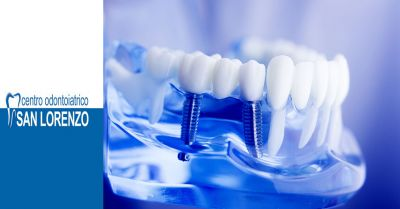 offerta implantologia all on four roma occasione implantologia dentale roma protesi dentarie