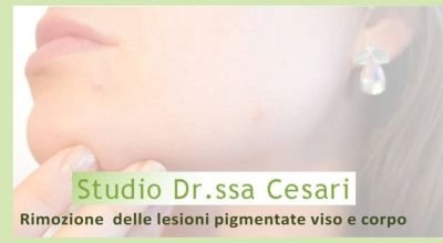 offerta trattamenti rimozione macchie della pelle a udine promozione trattamenti laser pelle