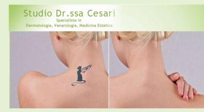 offerta rimozione tatuaggi a udine occasione rimuovere tatuaggi a udine
