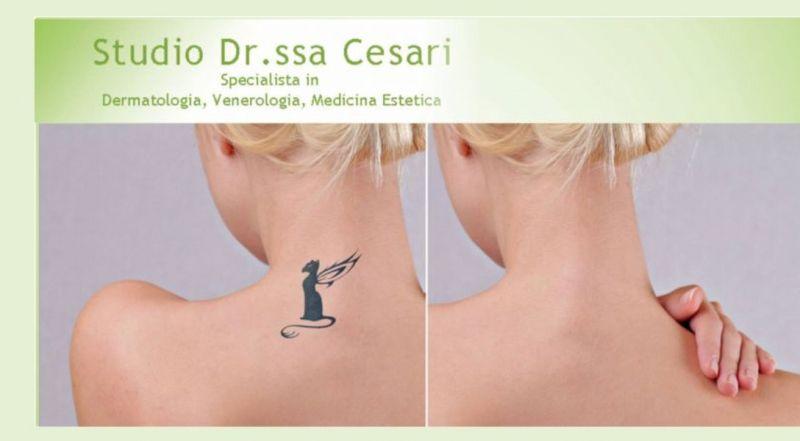 offerta rimozione tatuaggi a Udine - occasione rimuovere tatuaggi a Udine