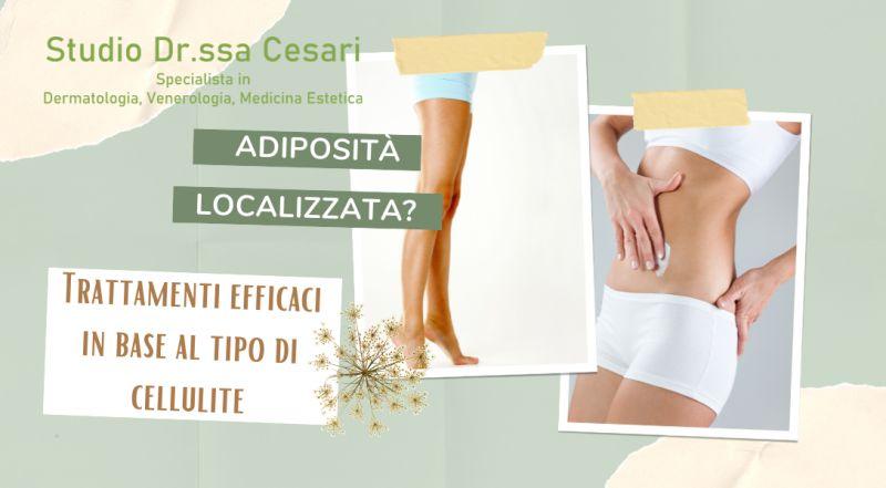 Occasione trattamento cellulite  mesoterapia, radiofrequenza, carbossiterapia a Udine – offerta trattamenti estetici anti cellulite a Udine
