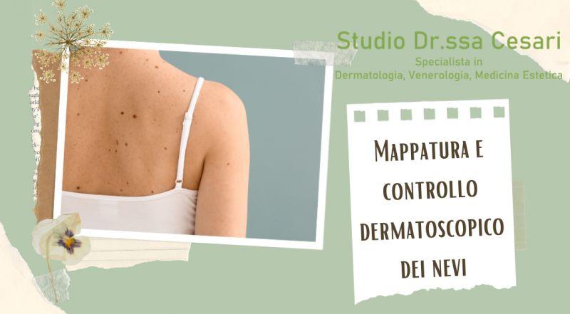 Occasione Mappatura e controllo dermatoscopico dei nevi a Udine – studio medico privato specializzato nei controlli dei nei a Udine