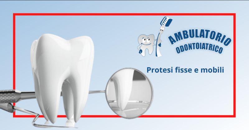 Offerta protesi dentaria fissa roma - occasione applicazione protesi dentali mobili roma