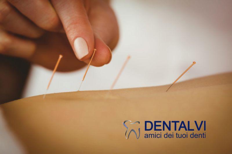 STUDIO DENTISTICO DENTALVI offerta agopuntura per ridurre ansia - agopuntura odontoiatria