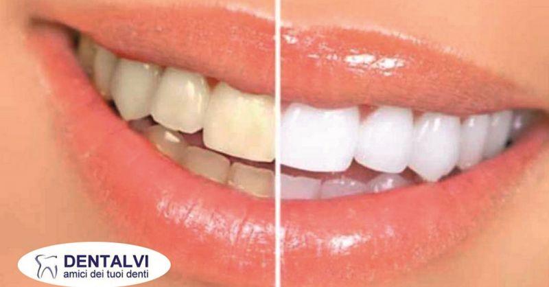 pulizia e sbiancamento denti Varese – Studio dentistico Varese e provincia