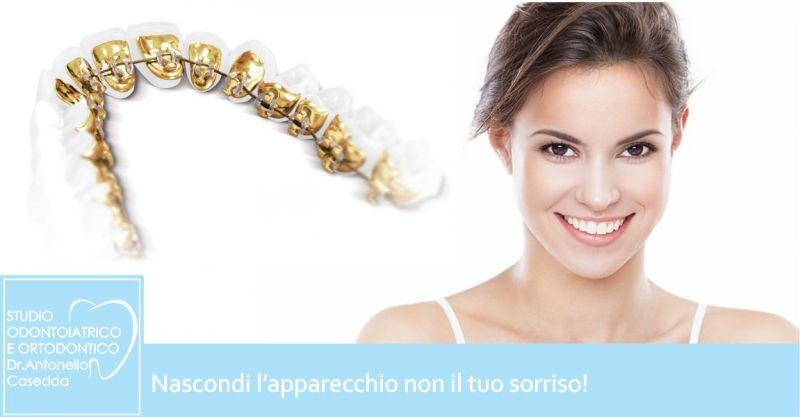 Studio Dr. Casedda - offerta apparecchio ortodontico linguale invisibile vantaggi malocclusione