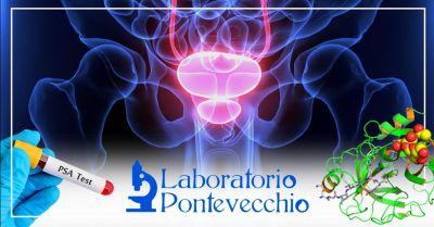 offerta prostata analisi del sangue bologna occasione esami specifici controllo prostata bologna