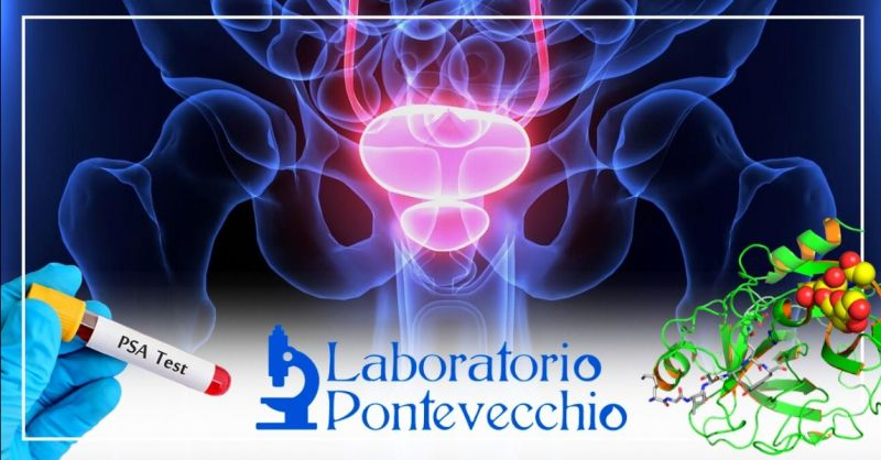 Offerta prostata analisi del sangue Bologna - Occasione esami specifici controllo prostata Bologna