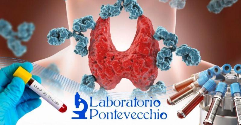 Offerta prenotazione esami del sangue Tiroide Bologna - Promozione esame completo Tsh Tiroide