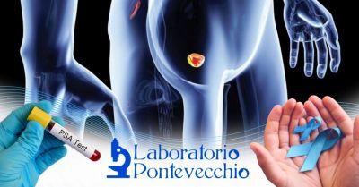 offerta esame del sangue completo prostata occasione dove fare esame psa prostata bologna