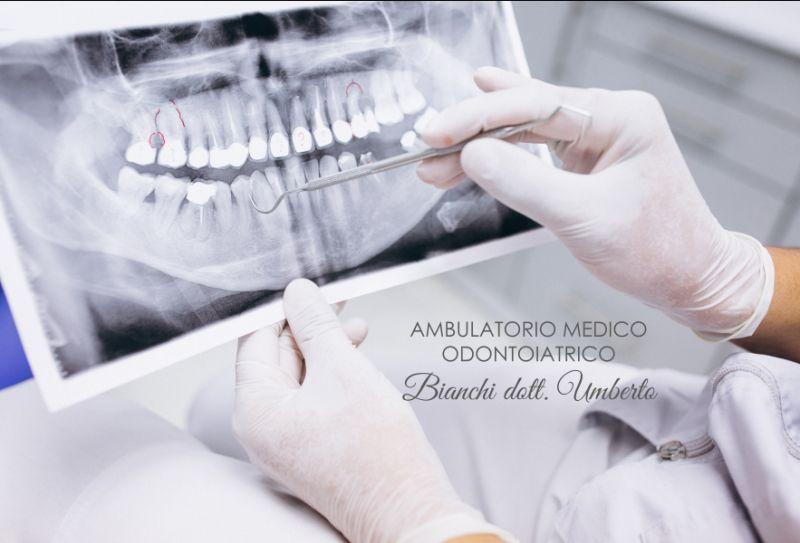 AMBULATORIO MEDICO ODONTOIATRICO DOTT BIANCHI ortopantomografia digitale - panoramica opt