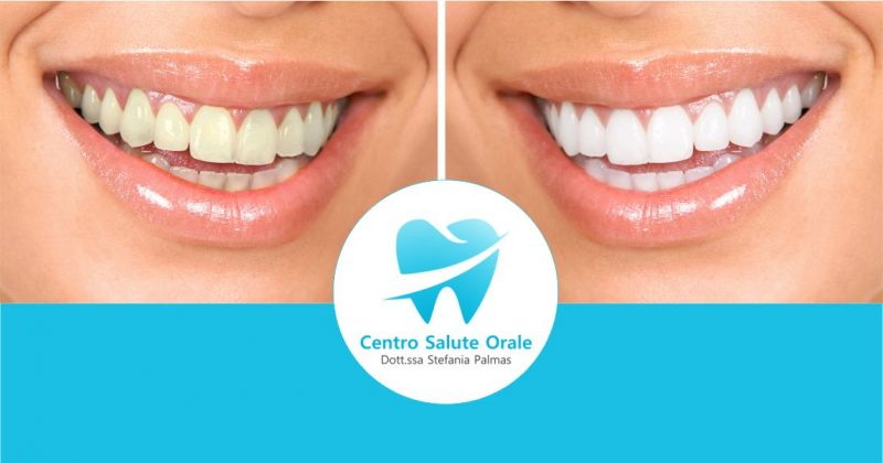 CENTRO SALUTE ORALE - offerta trattamento discromie con sbiancamento dentale professionale