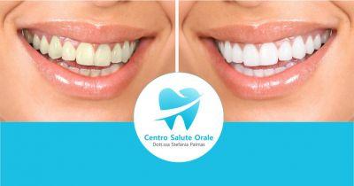 centro salute orale offerta trattamento discromie con sbiancamento dentale professionale