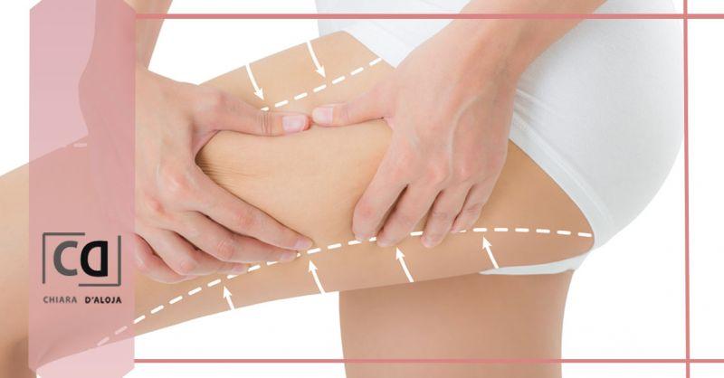 Offerta Cellulite Rimedi medici efficaci Verona - Occasione Trattamenti anticellulite definitivi medicina estetica