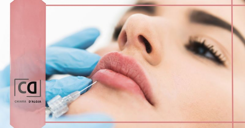 Offerta trattamenti di medicina estetica con filler Verona - Occasione Iniezione di Filler Acido Ialuronico