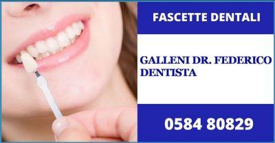 promozione faccette dentali e soluzioni piu efficaci di odontoiatria estetica