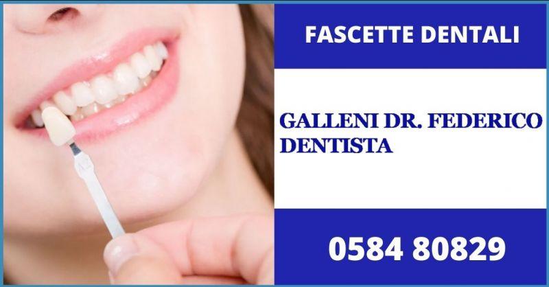 promozione faccette dentali e soluzioni più efficaci di odontoiatria estetica