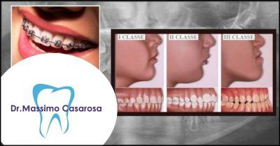 offerta trattamento disturbi temporomandibolari lucca e versilia studio dentistico casarosa