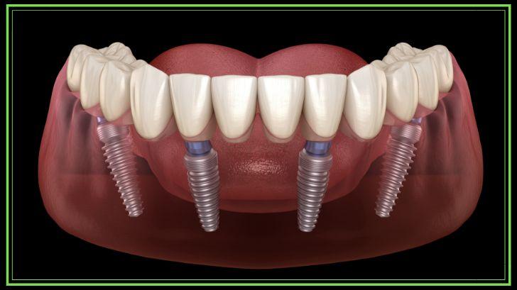 offerta impianto dentale intera arcata Roma