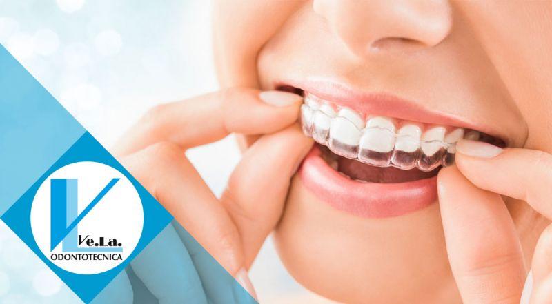 Sconto prima commissione laboratorio odontotecnico Torricella Verzate pavia – promozione laboratorio odontotecnico Torricella Verzate pavia